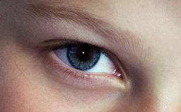 Ergebnis nach Entfernen der roten Augen