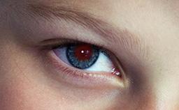 Originalfoto mit roten Auge
